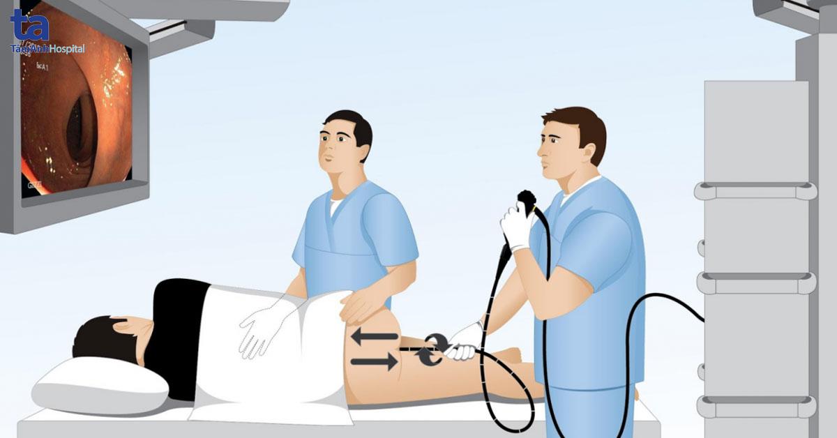 Nội soi là kỹ thuật mới chẩn đoán bệnh đường tiêu hóa hiệu quả nhất