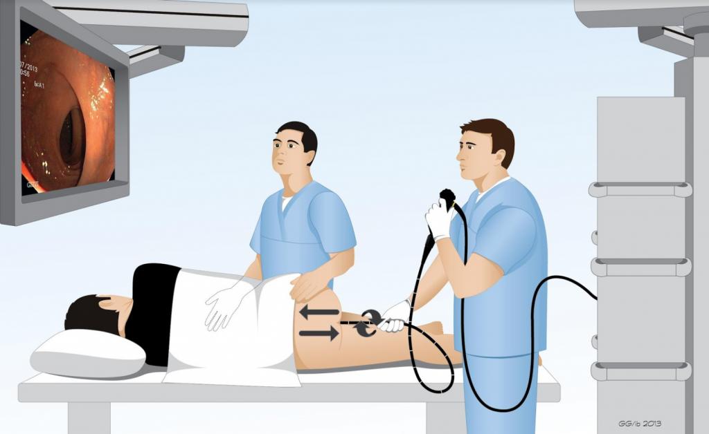 Nội soi đại tràng và những kỹ thuật mới chẩn đoán bệnh đường tiêu hóa