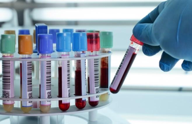 Các chỉ số xét nghiệm máu khi mang thai giúp chẩn đoán tình trạng sức khỏe của bà bầu và thai nhi