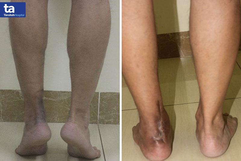 Sau điều trị, bệnh nhân có thể hồi phục vận động, gấp duỗi chân và kiễng chân bình thường