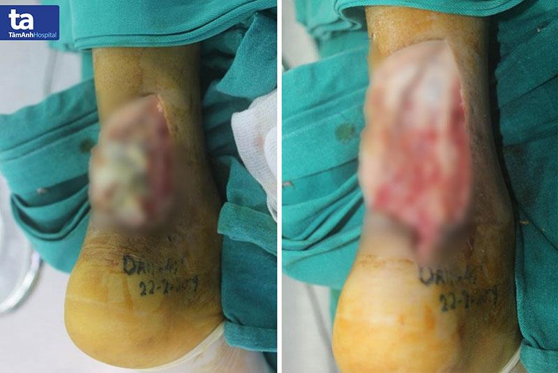 Phần gân hoại tử trước và sau khi được bóc tách của bệnh nhân D.
