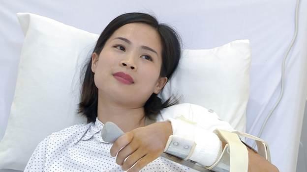 Ngay sau phẫu thuật lần thứ nhất, cánh tay của chị Mai Anh phục hồi rõ rệt, chị đã gấp được khớp khuỷu và đưa bàn tay lên miệng.