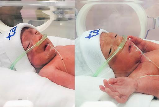 Hai bé trai chào đời với cân nặng 1,5kg và 1,6kg, hoàn toàn khỏe mạnh đang được chăm sóc tại khoa Nhi - Sơ sinh BVĐK Tâm Anh, Hà Nội
