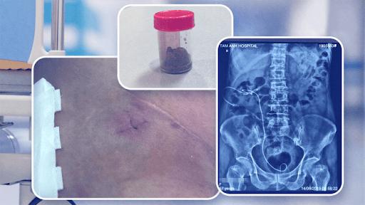 Hình ảnh X-Quang sau nội soi của bệnh nhân tán sỏi thận bằng máy laser thế hệ mới