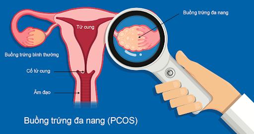 Hội chứng buồng trứng đa nang là một trong những nguyên nhân phổ biến dẫn tới vô sinh hiếm muộn ở phụ nữ