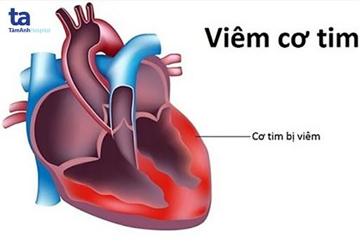 Viêm cơ tim là tình trạng viêm toàn bộ hoặc một phần khối cơ tim