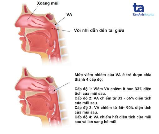 Các cấp độ của viêm VA