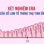 Xét nghiệm ERA xác định cửa sổ làm tổ trong thụ tinh ống nghiệm