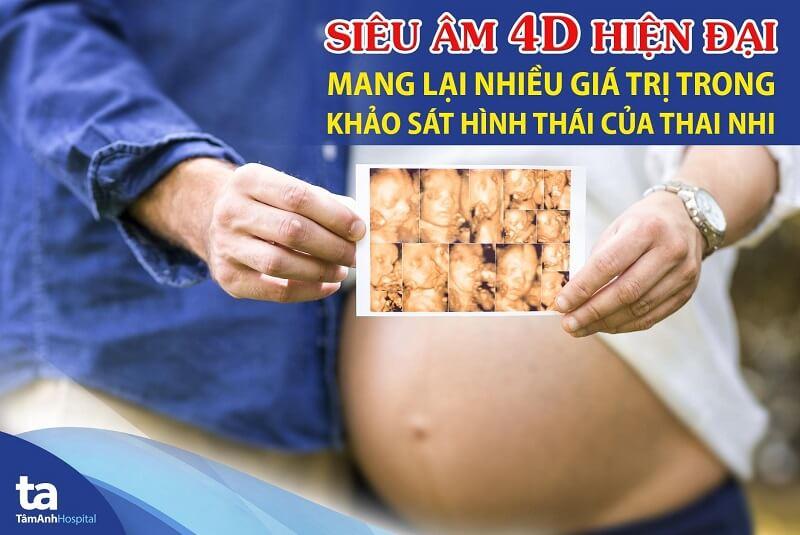 Siêu âm 4D hiện đại