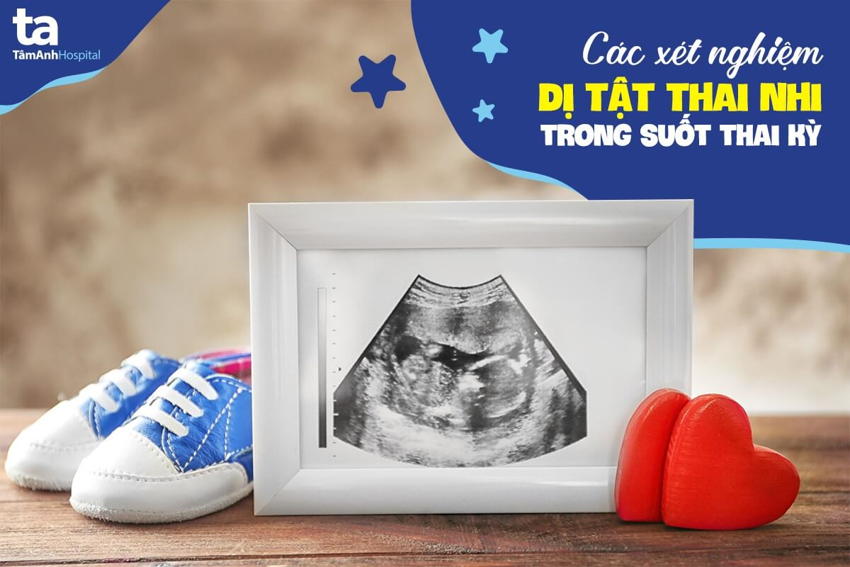 Xét nghiệm dị tật thai nhi