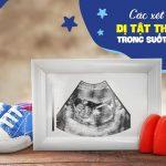 Từ A đến Z các xét nghiệm dị tật thai nhi trong suốt thai kỳ