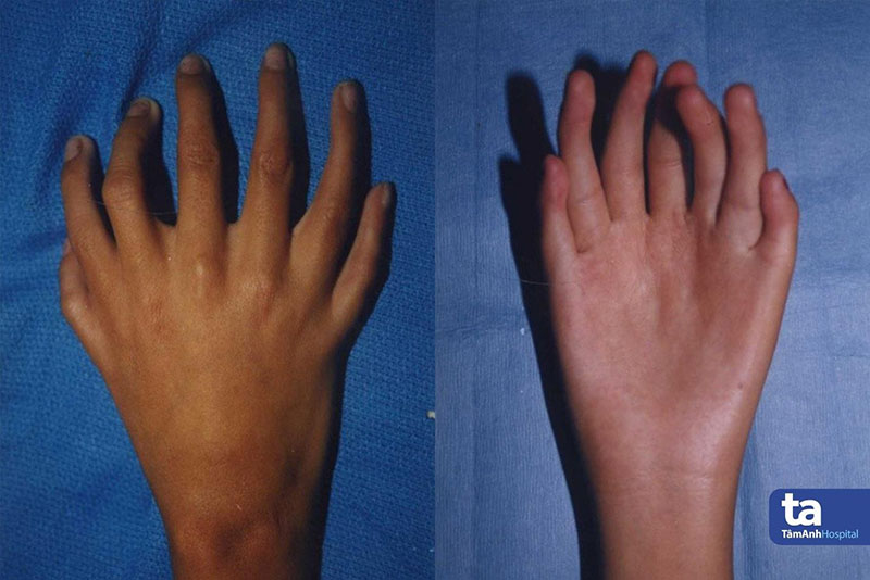 Bàn tay có 7 ngón, soi gương