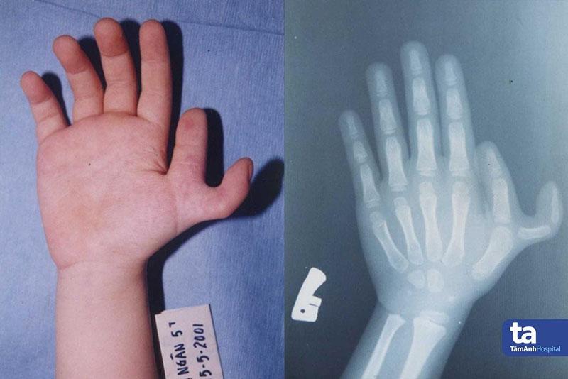 Ngón cái tách đôi độ IV thành ngón riêng biệt