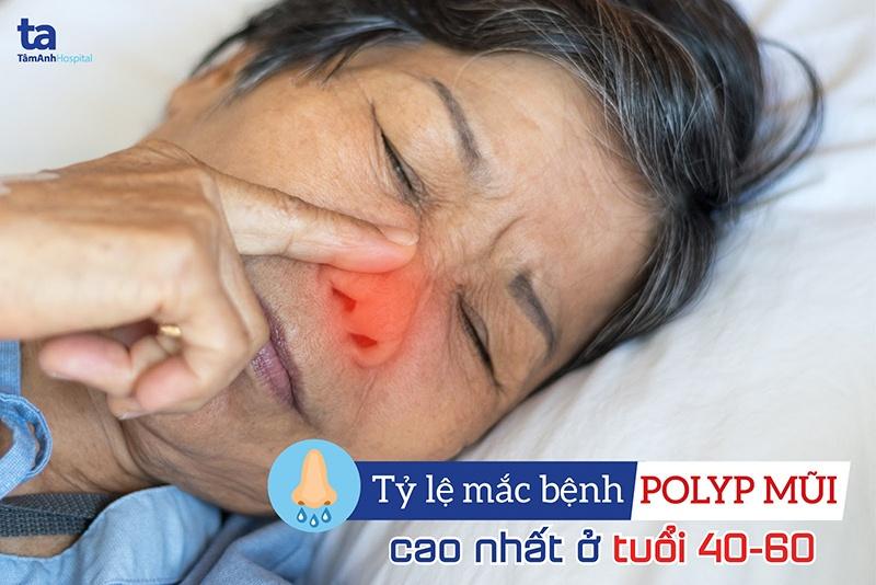 Độ tuổi dễ mắc polyp mũi