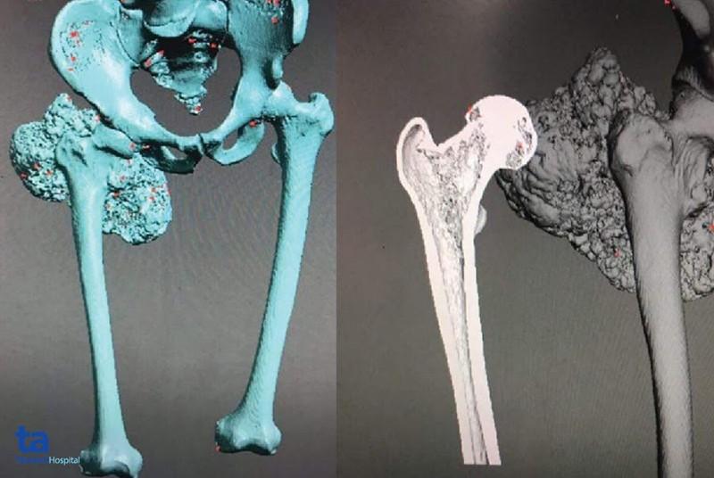 Hình ảnh X-quang bệnh nhân u xương