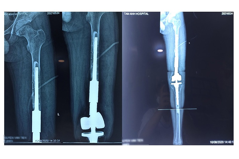 Phin chụp chân bệnh nhân sau phẫu thuật
