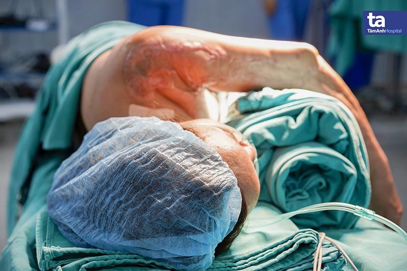 Vết sẹo trên tay bệnh nhân