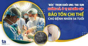 Phẫu thuật cắt khối ung thư sụn khổng lồ, vị trí hiếm gặp, bảo tồn chi thể cho bệnh nhân lớn tuổi