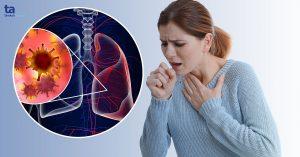 Ung thư phổi (u phổi ác tính): Nguyên nhân, dấu hiệu và điều trị