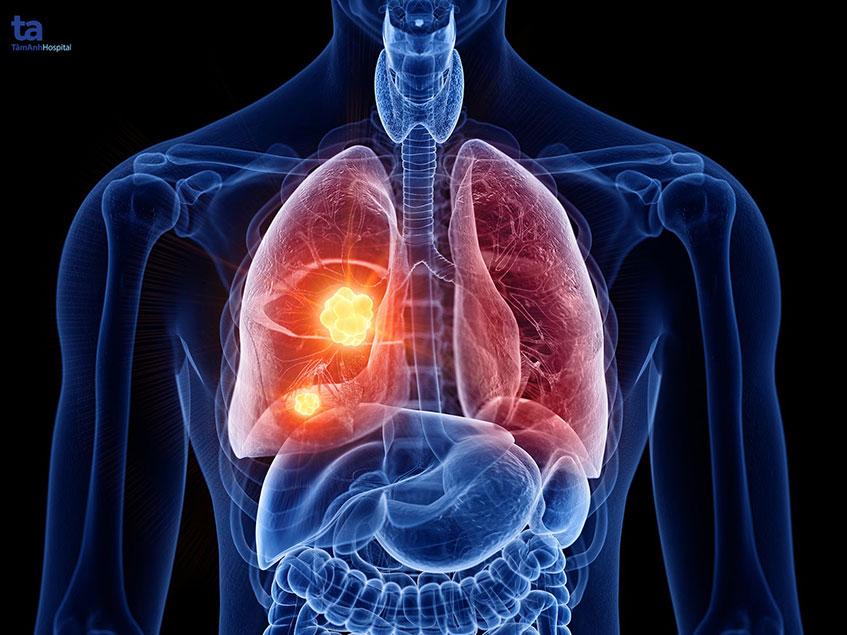 Bụi phổi (bụi trong phổi): Nguyên nhân, dấu hiệu và cách điều trị