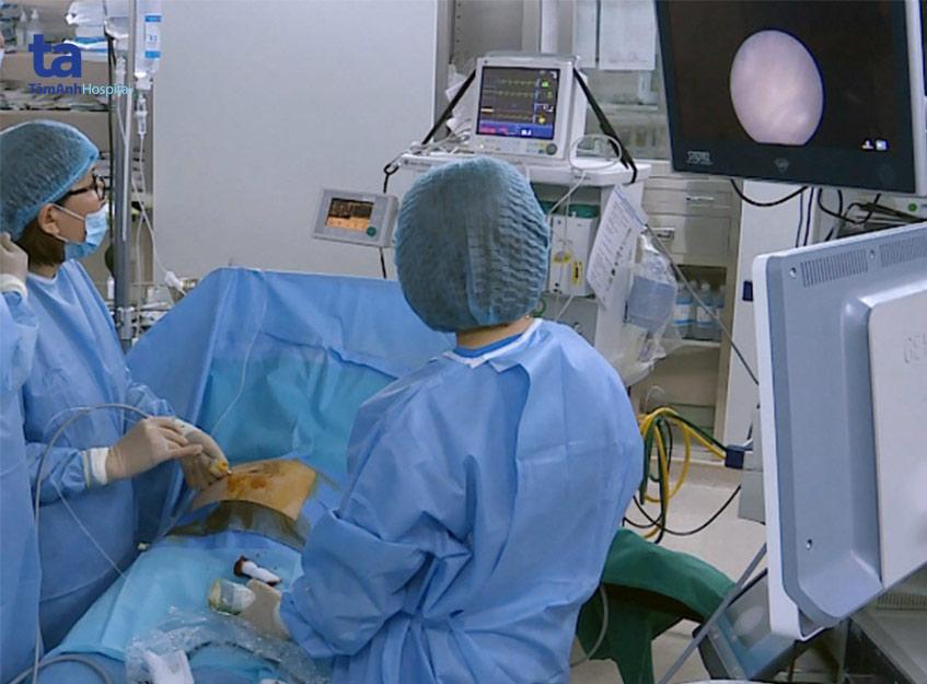 Bác sĩ Đinh Thị Hiền Lê (thứ hai từ phải qua) đang đốt các mạch máu nối trong ca phẫu thuật nội soi truyền máu song thai