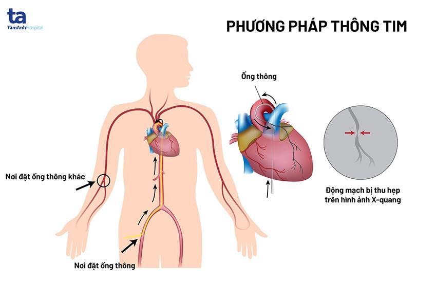 phuong phap thong tim