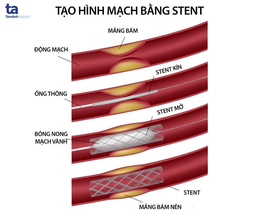 tao hinh mach vanh bang stent