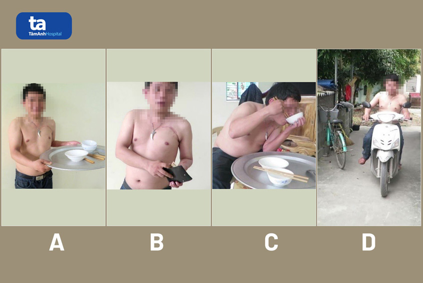 Nguyen Huu V ton thuong toan bo re than kinh dam roi canh tay trai