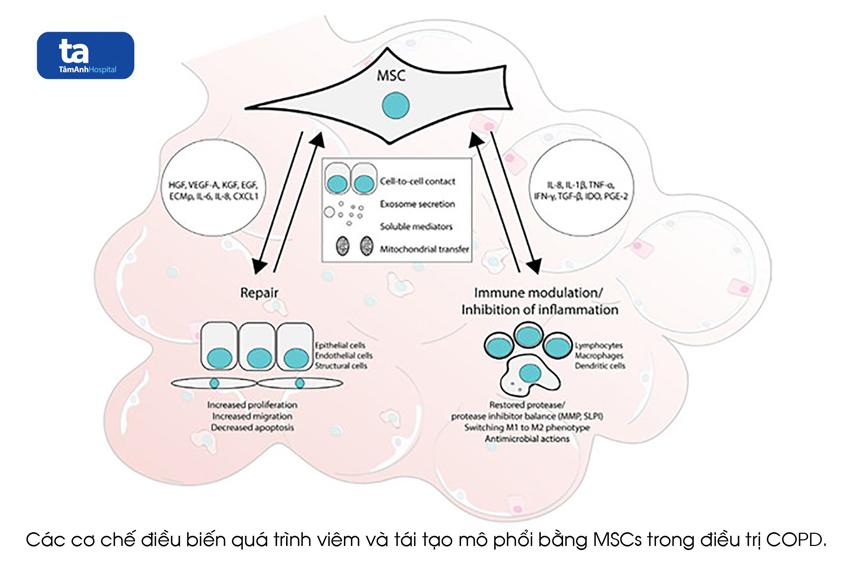 dieu tri COPD bang MSCs