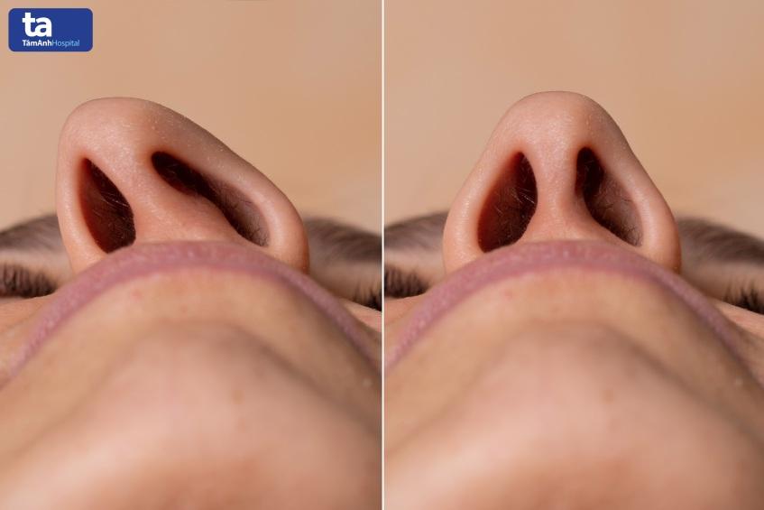 lệch vẹo vách ngăn mũi